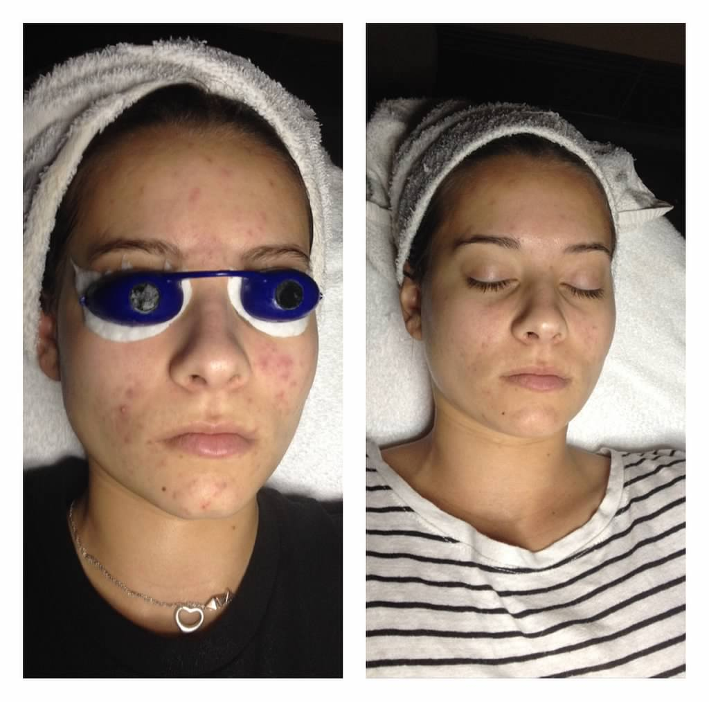 Acne before and after skin solutions corona for A savvy you salon cabot