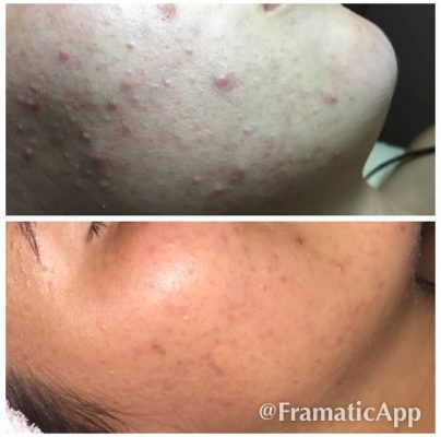 skinsolution acne treatment