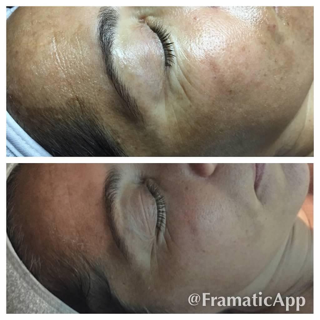 Facials skin solutions corona for A savvy you salon cabot
