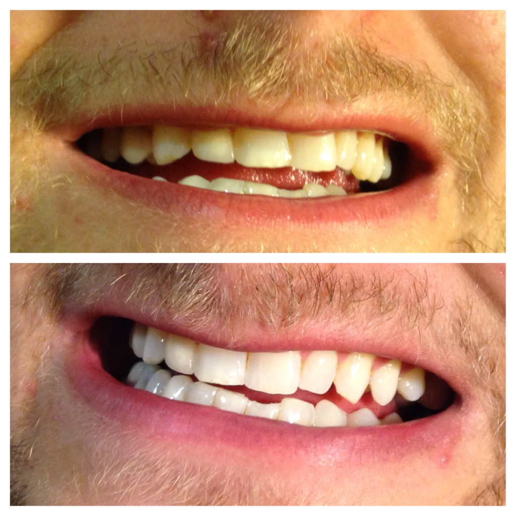 Before and after teeth whitening skin solutions corona for A savvy you salon cabot